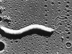 [Picture of Helicobacter Pylori under microscope]